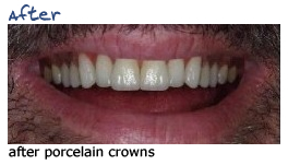 sm-crowns-after